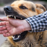 Steps to Take if You're Bitten by a Dog